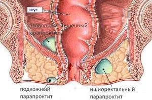 Лечение острого парапроктита