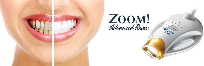 Отбеливание зубов, как эстетическая процедура