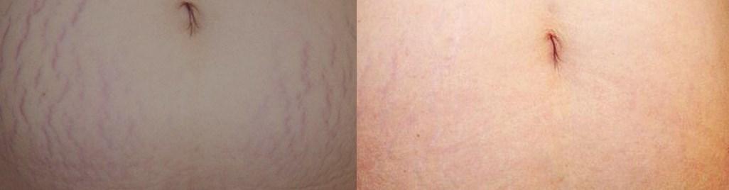 Фракционная шлифовка до и после фото