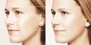 Пластика овала лица