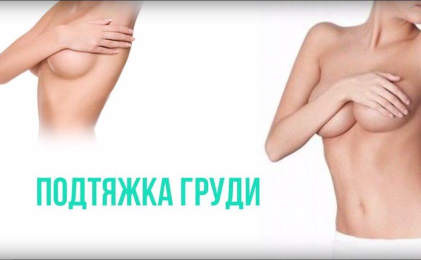 Якорная мастопексия (подтяжка груди)