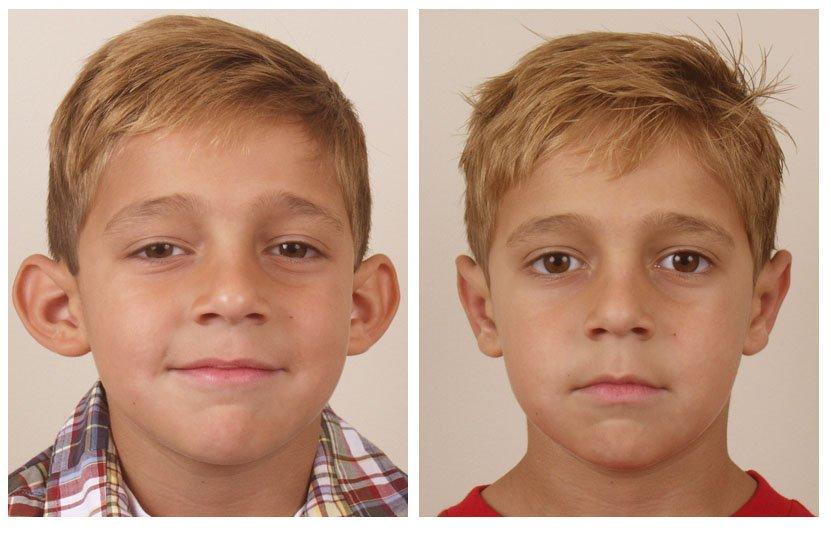 Лазерная отопластика фото до и после