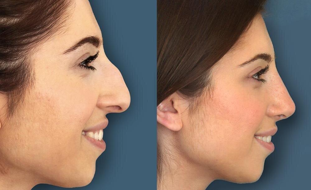 пластика крыльев носа