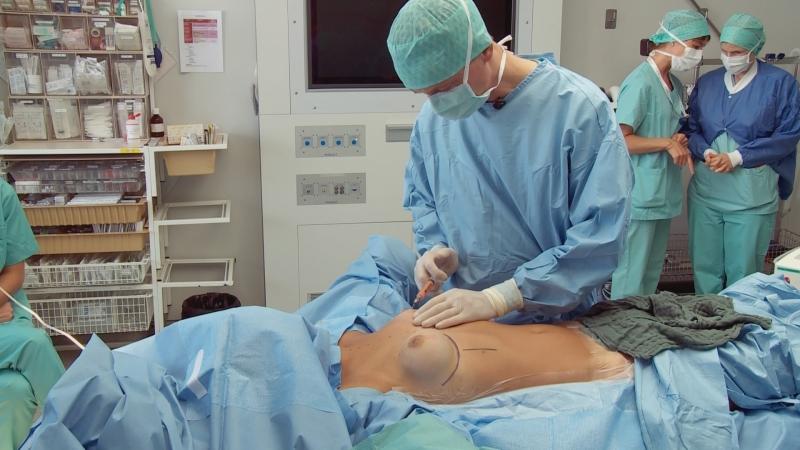 уменьшение груди операция