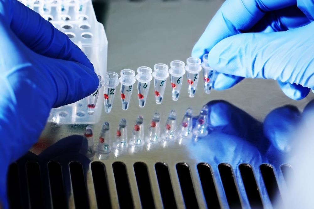 Подтверждение немецкого происхождения через генетические лаборатории