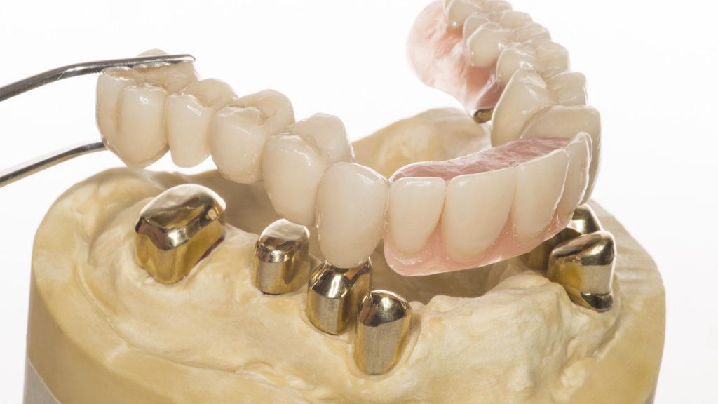 льготное протезирование зубов